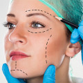 Dr. med. Natalie Keller Ästhetische Medizin & Lasertherapie